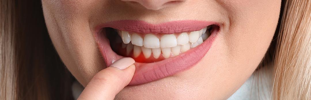 Parodontologie zur Behandlung von Parodontitis
